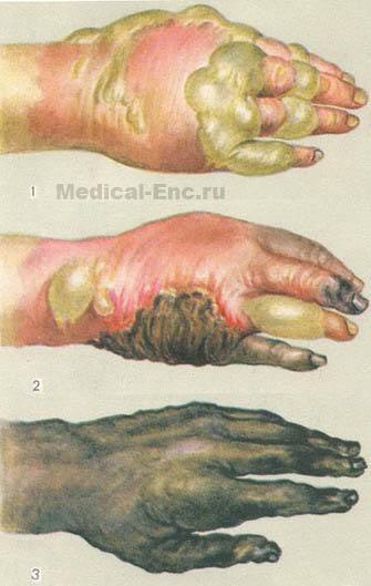 Ожоги - повреждение тканей, вызванное действием высокой температуры (термические ожоги), химических веществ...