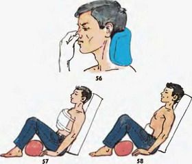 Варикоз на ногах лечение пиявками