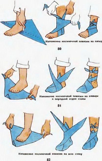 """Для наложения повязки  """"галстуком """" косынку складывают способом, показанным на..."""