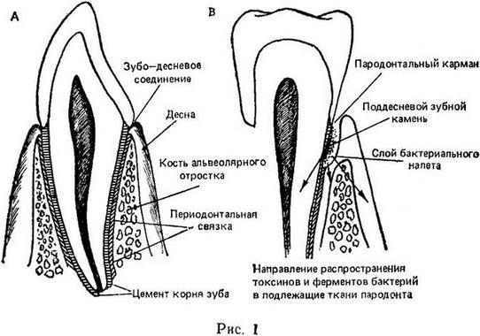 При нарушении очистки зубов