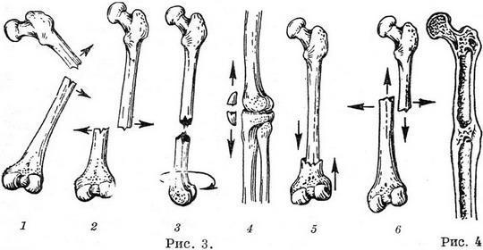 Основные виды переломов: 1