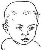 и как года: распознать первые. детей грудничков у до Рахит