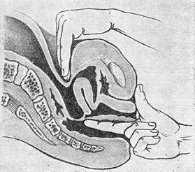 Осмотр гинеколога порно фото пизды и влагалища 187