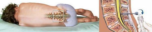 Массаж на шейный отдел позвоночника грудничку видео