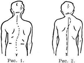 Упражнения для профилактика нарушений осанки