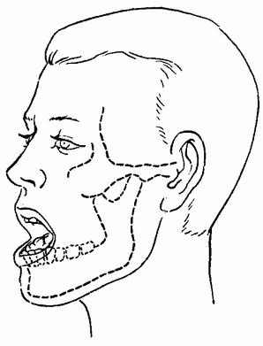 Повреждения нижней челюсти судебная медицина экстренная медицинская помощь и медицина катастроф