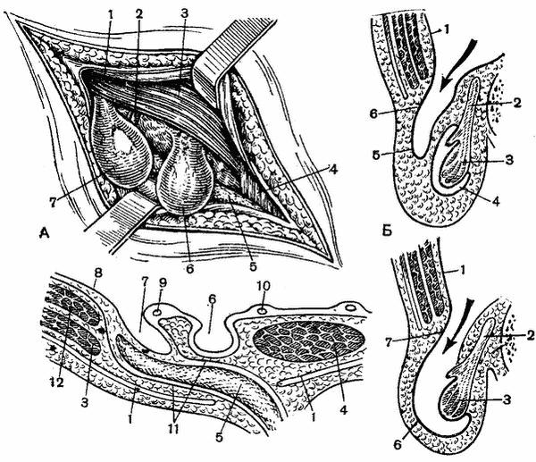 паховый канал Canalis Inguinalis топографическая анатомия живота
