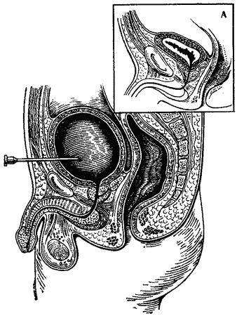 Секс при переполненном мочевом пузыре
