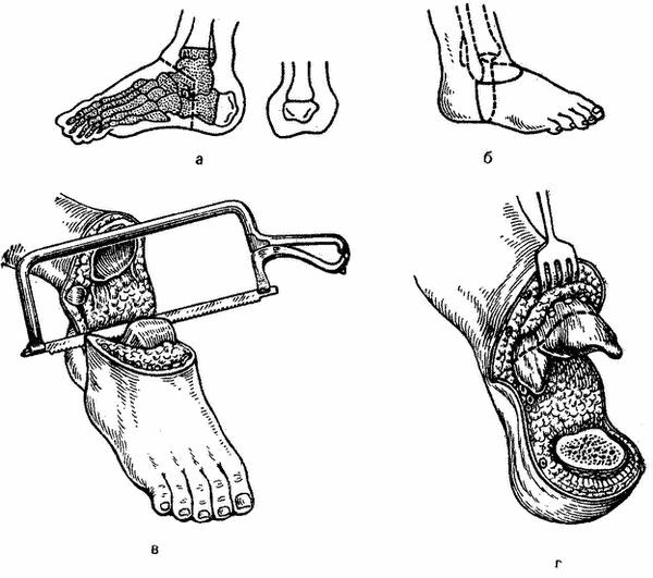Ампутация голеностопного сустава как закрепить компресс на плечевом суставе