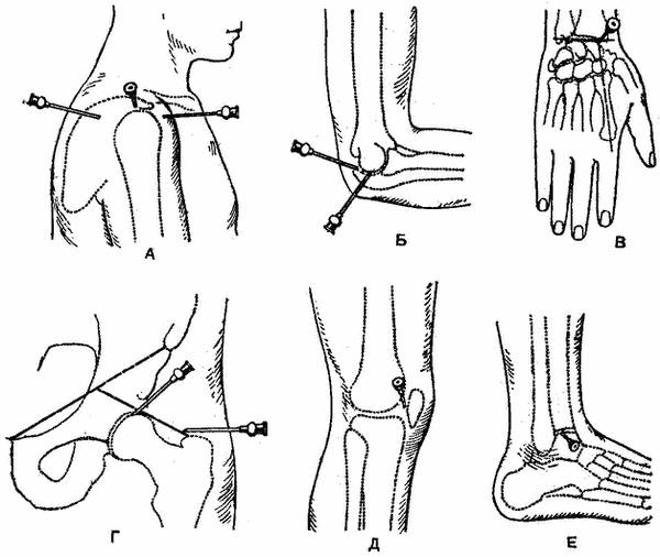 Пункция локтевой сустав в какой аптеке можно купить лазер для суставов