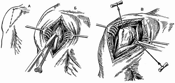 что такое резекционная артропластика тазобедренного сустава