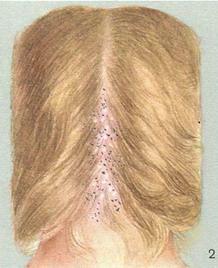 Трихофития (синоним стригущий лишай) - это заболевание