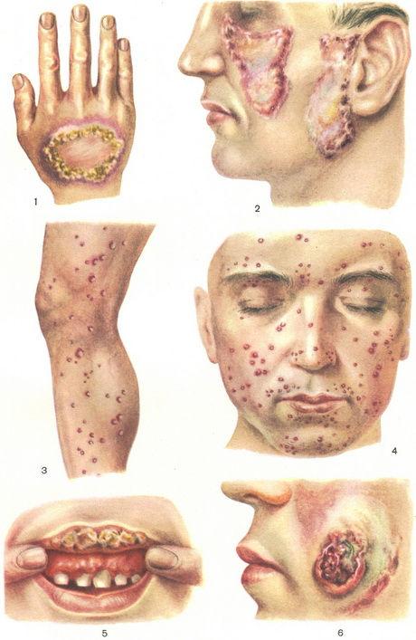 Туберкулез Милиарный фото