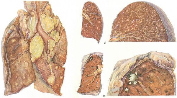 Туберкулёз лёгких формы