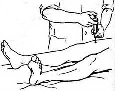 блокада для тазобедренного сустава