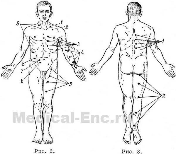Болевые точки на теле человека.