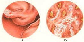 Альтернативные методы лечение рака предстательной железы