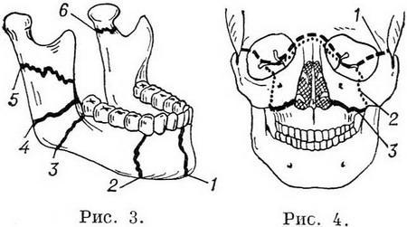 фото перелом нижней челюсти