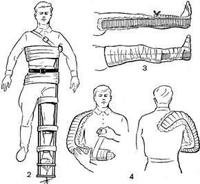 Сколько суставов захватывает шина при иммобилизации бедра закрытый перелом тазобедреного сустава