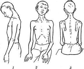 заболевший энцефалитолм, симптомы, как определлить