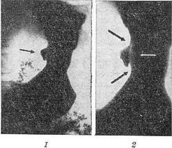 исследование секреторной функции желудка:
