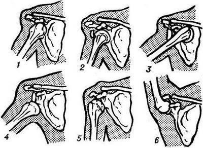 Вывих плеча (плечевого сустава) предплечья пальца | симптомы и ...