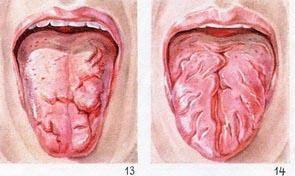 воспаление языка: