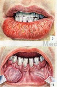 опухоли губы