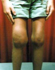 Эффективный препарат от запущенной формы грибка ногтей на ногах