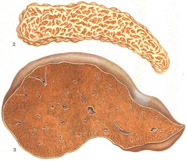 Гемохроматоз фото