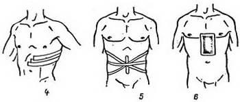Десмургия виды правила и техника наложения повязок
