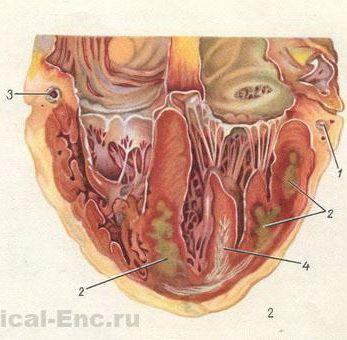 Инфаркт миокарда задней стенки обширный трансмуральный симптомы ...