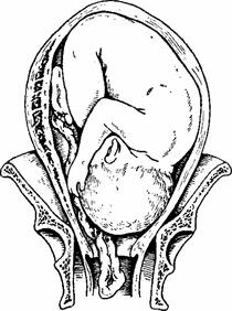 Плоский пузырь у беременных 5