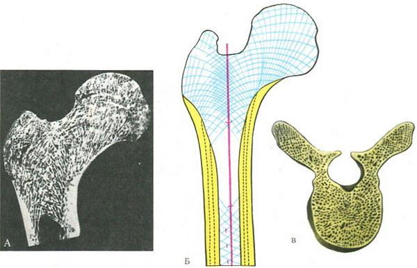 бедренной кости; Б — схема