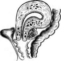 Ретроцервикальный эндометриоз схема