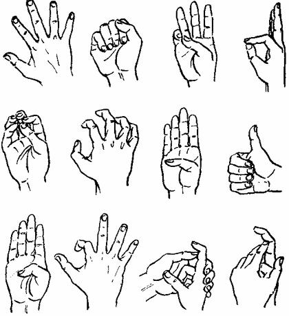 Гимнастика при разрыве связок на пальце