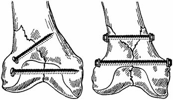 Переломы бедра и голени иммобилизация