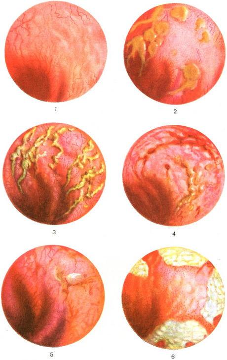 Проктосигмоидит