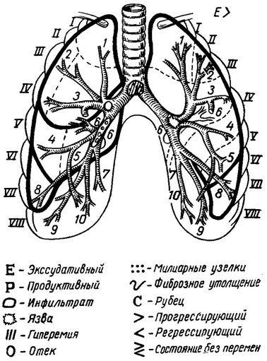 Туберкулез бронхов на