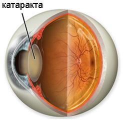 Что такое хрусталик глаза