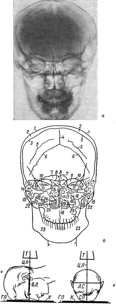 схема укладки головы (в — вид