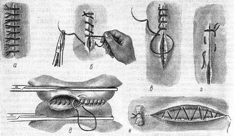 Медицинский шов схема