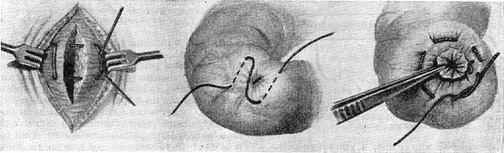 Швы хирургические