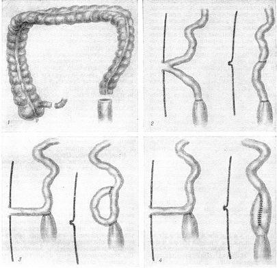 илео-ректальный анастомоз