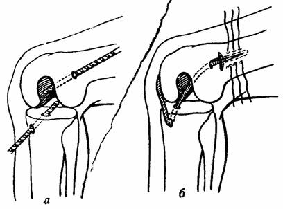 Симптомы и лечение повреждения связок коленного сустава