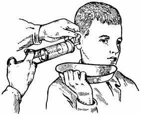 Как промывать ухо в домашних условиях шприцом 130